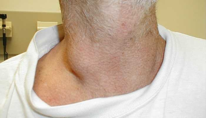 how to tell if your lymph nodes are swollen